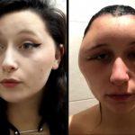 PPD(パラフェニレンジアミン)で顔が2倍に腫れたフランス美女エステル!国産の毛染剤は?予防法は?【仰天ニュース】
